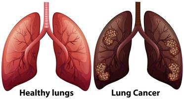 Human Anatomy of Lung Condition vector