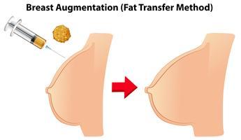 Bröstförstoring fettöverföringsmetod