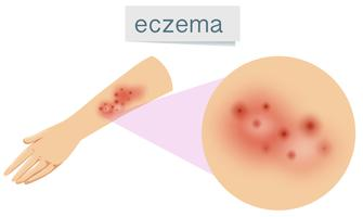 A Vector of Eczema on Skin