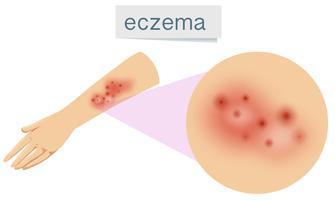 En vektor av eksem på huden