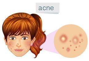 Een jonge dame acne op gezicht