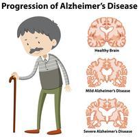 Progresión de la enfermedad de Alzheimer