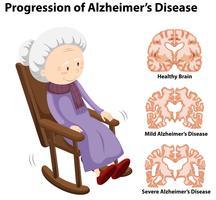 Voortgang van de ziekte van Alzheimer