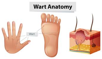 Anatomie humaine verrue sur la main et le pied vecteur