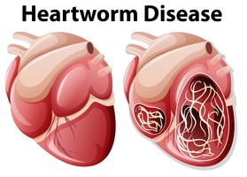 Diagrama de la enfermedad del gusano del corazón fondo blanco