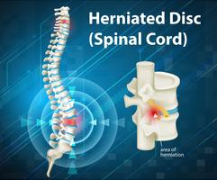 Diagram som visar herniated Disc