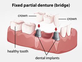 Ponte de dentadura parcial fixa vetor