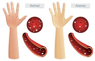 Human Anatomy Vector of Anemia