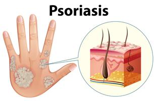 Diagram showing psoriasis on human hand