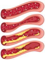 Schéma montrant un caillot de sang dans les veines humaines