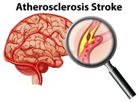 Atherosclerosis Stroke on White Background