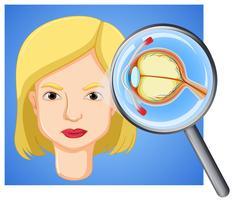 Eine weibliche Augapfelanatomie