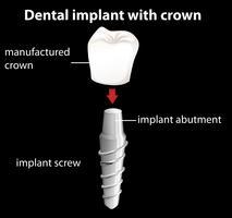 Un implante dental con corona.