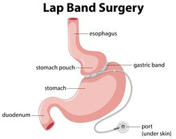 Lap Band chirurgie diagram