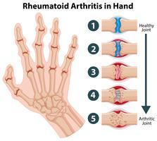 Diagrama que muestra artritis reumatoide en la mano.