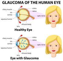 Glaukom av det mänskliga ögat