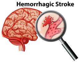 Um acidente vascular cerebral hemorrágico de anatomia humana