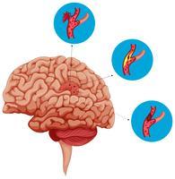 Diagrama que muestra problemas con el cerebro.