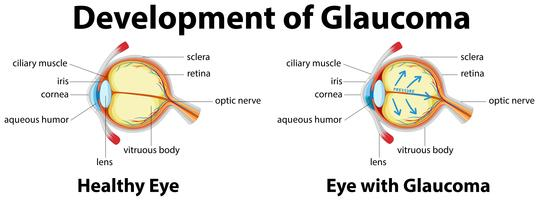 Development of Glaucoma in human eyes