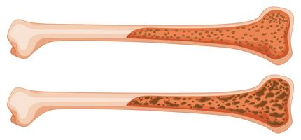 Ostéoporose dans les os humains