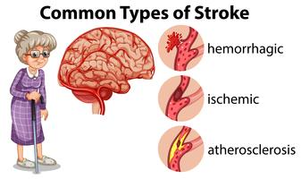 Common Types of Stroke  vector