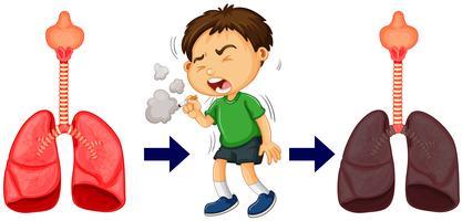 Chico fumando y cancer de pulmon