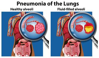 Pneumonia of the lungs concept