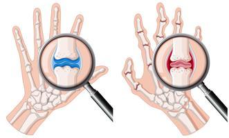 Una mano umana con l'artrite reumatoide