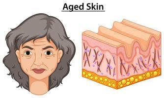 Diagrama mostrando mulher com pele envelhecida