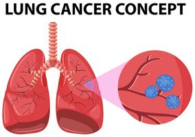 Diagram of lung cancer concept