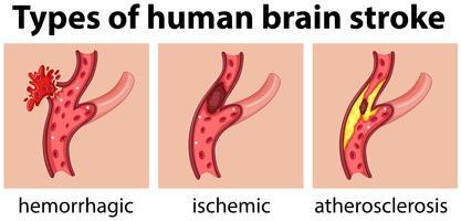 Tipos de accidente cerebrovascular humano