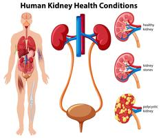 Human Kidney Health Conditions