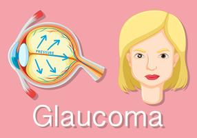 Diagram showing eyes with glaucoma
