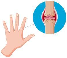 Mano umana e articolazioni difettose, artrite