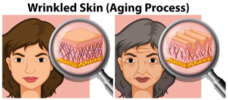 Young and old lady skin vector