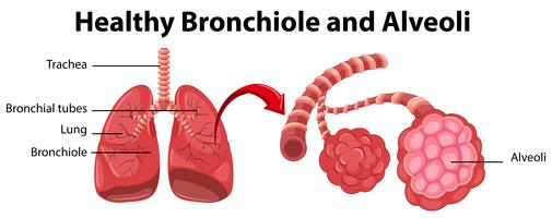 Diagrama mostrando bronquíolo e alvéolos saudáveis
