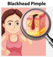 Young woman with blackhead pimple