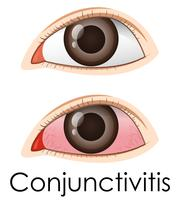 Conjunctivitis in human eyes