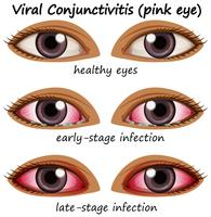 Virale conjunctivitis in de ogen van mensen