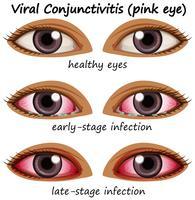 Conjuntivite viral nos olhos humanos