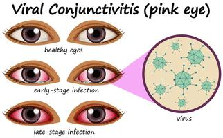 Maladie de l'œil humain avec conjonctivite virale