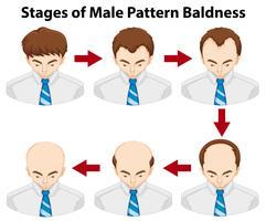 Diagrama que muestra las etapas de la calvicie de patrón masculino