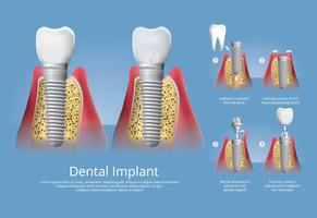 Illustration vectorielle de dents humaines et implant dentaire