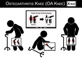 Vieil homme souffrant de douleur au genou, le moniteur montre l'image de l'arthroplastie totale du genou (avant et après traitement chirurgical) Vecteur du genou arthrosique (conception plate) (concept de soins de santé)