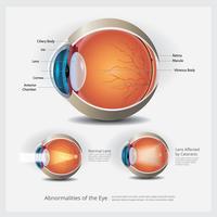 Anatomía ocular con anomalías oculares, ilustración vectorial