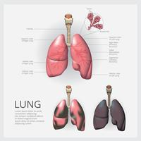 Lung med detalj och lungcancer vektor illustration