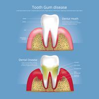 Dents humaines Étapes de l'illustration vectorielle de la maladie des gencives