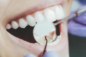 gros plan de dentiste