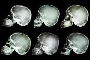 colección del cráneo del asiático foto