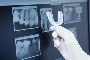 radiografía de los dientes foto